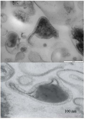 Une découverte fondamentale: les nanobes Page16_5